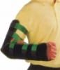 Nẹp máng cánh tay
